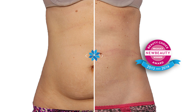 cool sculpting before & after 1